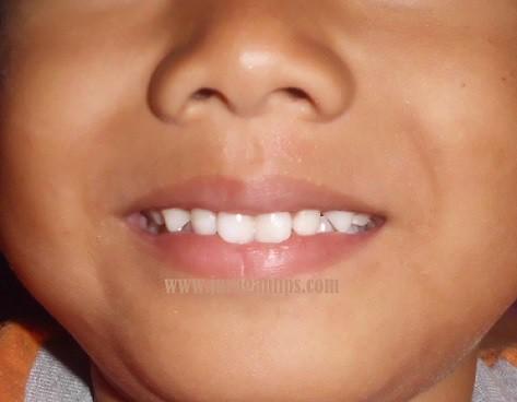 5 Tips Membuat Gigi Tampak Putih Bersih dan cantik alami